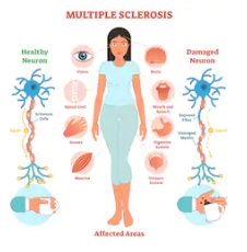 Diet-And-Nutrition-For-Multiple-Sclerosis