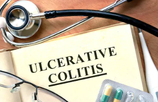 What-Is-Ulcerative-Colitis-?