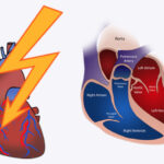 Heart Attack – Are You At Risk? + Causes, Symptoms & Treatment