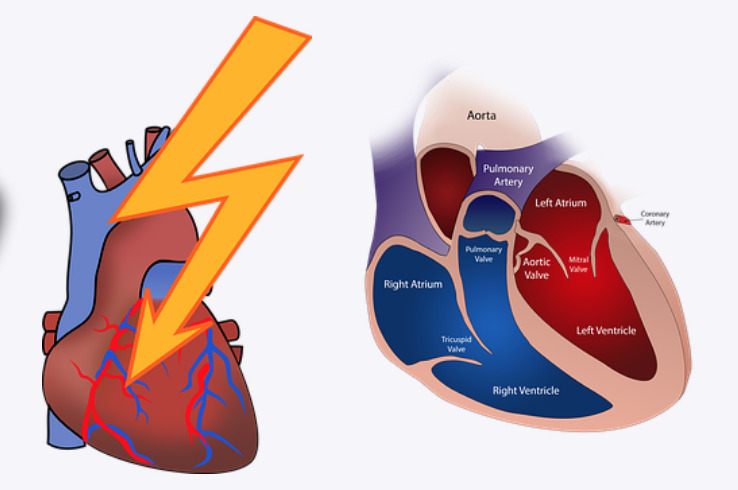 Heart-Attack-Facts