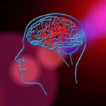 Prevent A Stroke Naturally And Cut The Risks Factors