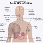 HIV and AIDS – History Of A Pandmic