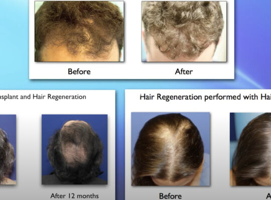 Androgenetic-Hair-Loss